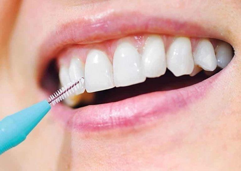 tanden bleken naaldwijk